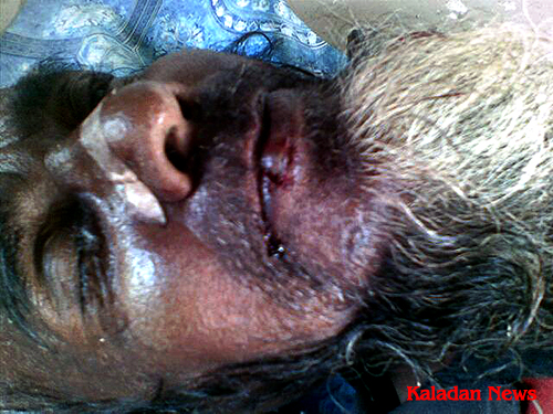 Hussein, a Rohingya beggar died in hospital after being beaten by police.