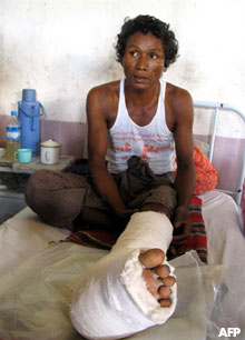 A landmine victim, Than Lwin, sits in his hospital bed in Mone village, some 160 kilometers north of Rangoon, in a file photo dated 2006. Photo: AFP